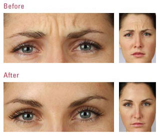 BOTOX Injections Miami Beach, Botox Offers South Beach, Botox Coupons Sobe, Botox Before and After Pictures